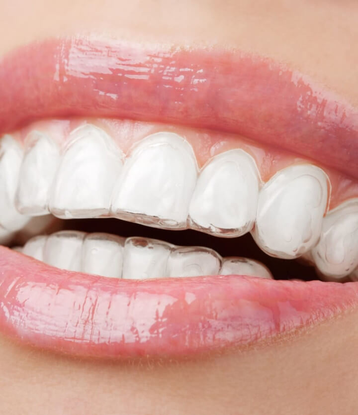 about_aligners