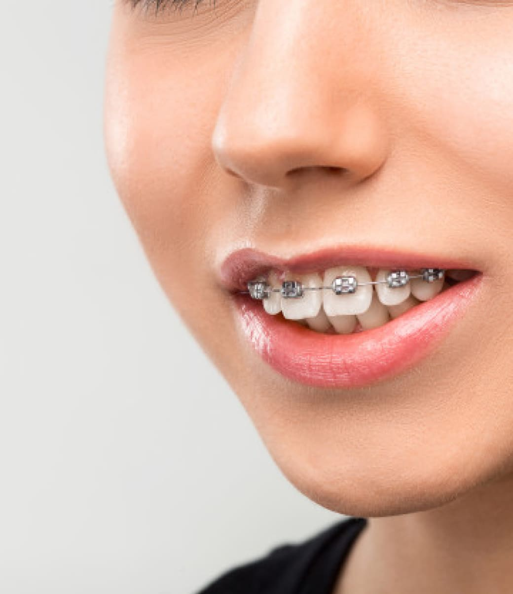 about_braces