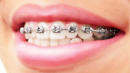 metall_braces